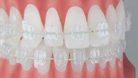 ortodoncja knurow aparat zamki ceramiczne