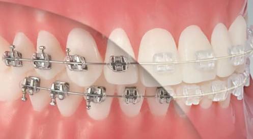 ortodoncja rybnik aparat zamki kosmetyczne