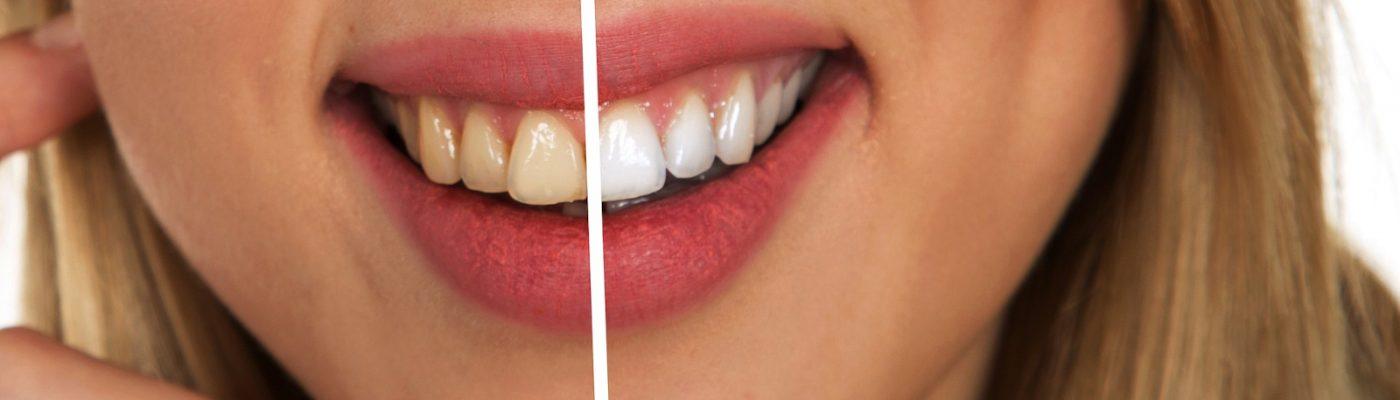 wybielanie zebow knurow stomatologia